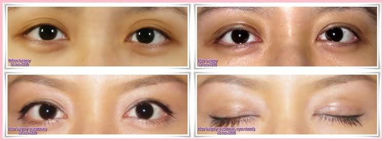 Double Eyelid Surgery Others
